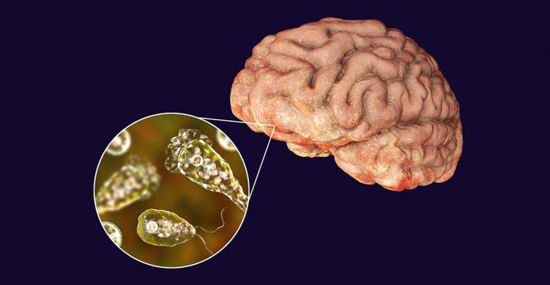 الاميبا اكلة الدماغ