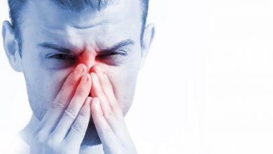 حساسية الانف