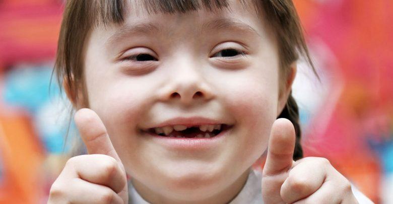 التعامل مع الطفل المصاب بمتلازمة داون